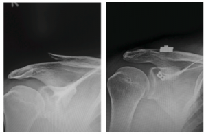 AC Joint Surgery Before and After