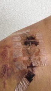 patient's shoulder after AC Joint Surgery