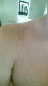 healed patient's shoulder after AC Joint Surgery