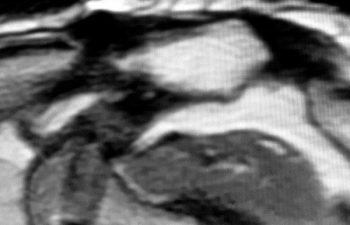 case 1 MRI 9 years After AC Joint Repair Surgery