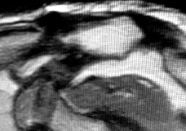 case 1 mri 9 years post