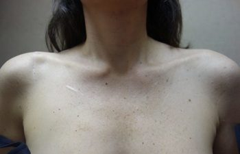 Case 5 Clinical Photo of Patient with AC Joint Separation