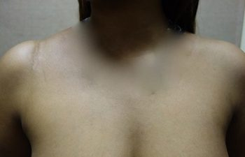 Case 9 Clinical Photo of Patient with AC Joint Separation