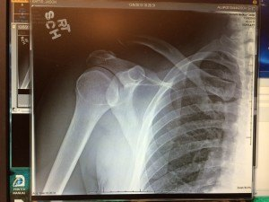 AC Joint injured shoulder