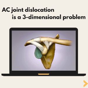 Ac joint dislocation is a 3-dimensional problem