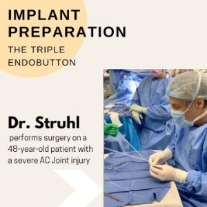 Dr. Struhl during implant preparation with triple endobutton technique. Dr. Struhl performs surgery on a 48-year old patient with a severe AC joint injury